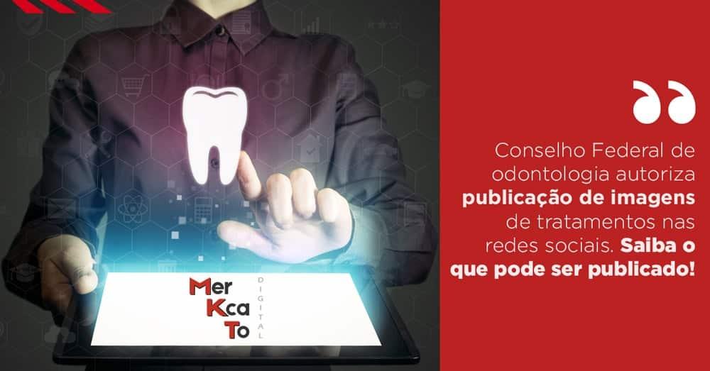 Resolução 196 do CFO - Conselho Federal de odontologia autoriza publicação de imagens de tratamentos nas redes sociais. Saiba o que pode ser publicado.